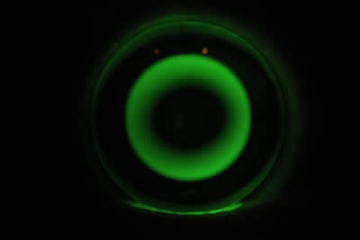Visique Hutt Forge Rotational Symmetrical Orthokeratology Lens