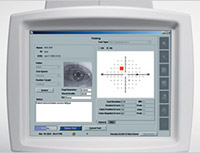 Zeiss Matrix Screen Visique Optometrists