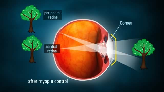 After Myopia Control