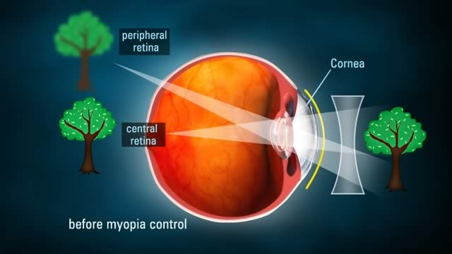 Before Myopia Control